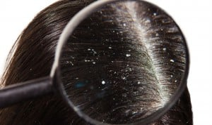 Drive Away your Dandruff With These Easy Tricks